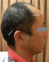 側頭部置鍼